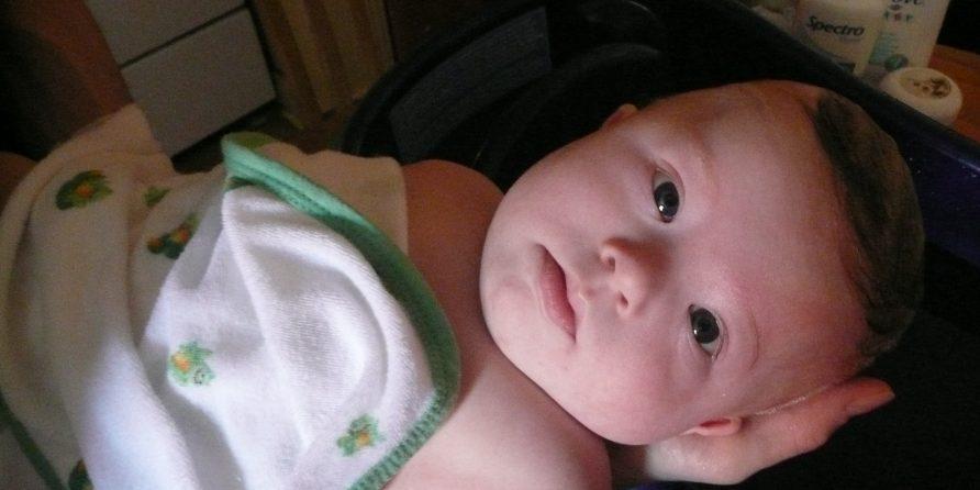 bébé hypotonique symptômes